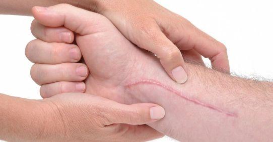 la-piel-como-cicatrizan-las-heridas-01